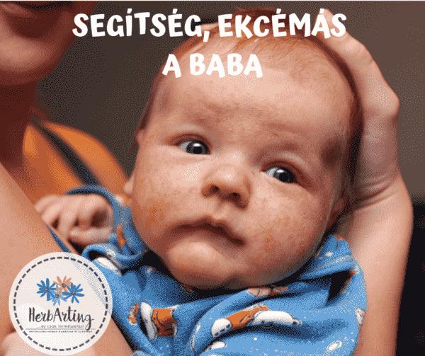 csecsemő ekcéma
